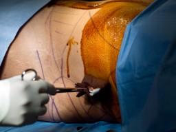 Patient wird für die Liposuktion vorbereitet
