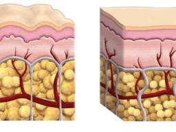 Cellulite - schematische Darstellung